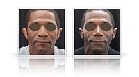 Ethnic augmentation rhinoplasty.