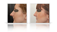 Primary open-tip reduction rhinoplasty.