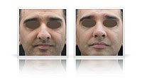 Open tip reduction rhinoplasty, thick nasal skin.