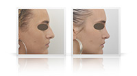 Reduction of the nasal bump, contouring of the tip of the nose.