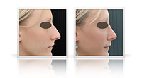 Reduction rhinoplasty, correction of the nasal bump.