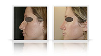Reduction rhinoplasty, narrowing of the tip of the nose.