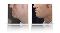 Anterior necklift, liposuction to jawline.