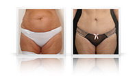 Abdominoplasty, VASER liposelection to flanks.