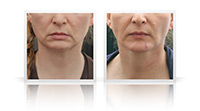 Neck Lift, chin remodeling.