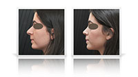 Open-tip reduction rhinoplasty.
