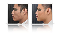 Primary ethnic rhinoplasty.