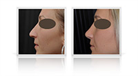 Tertiary open tip rhinoplasty following to primary interventions.
