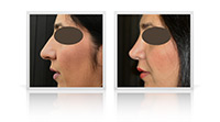 Primary open tip reduction rhinoplasty for correction of the nasal tip width
