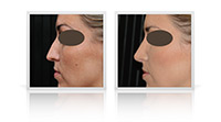 Rhinoplasty Open Tip, Rhinoplasty Primary, Rhinoplasty Reduction
