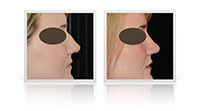 Open Tip Rhinoplasty, Reduction Rhinoplasty, Primary Rhinoplasty