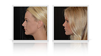 Rhinoplasty / Nose reshaping